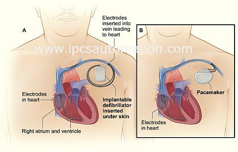 Implantable Cardioverter Defribrillators in IPCS